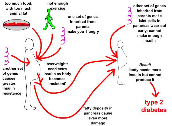 Causes of Type 2 diabetes,  http://www.usernetsite.com/society/type-2-diabetes-and-how-can-be-cured-or-treatedu.php