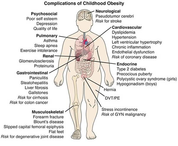 Health effects of childhood obesity