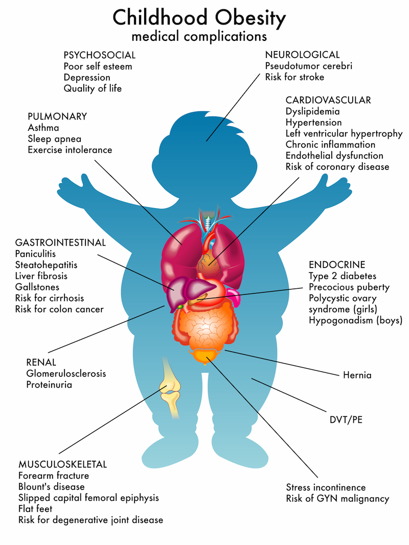 Medical problems of childhood obesity