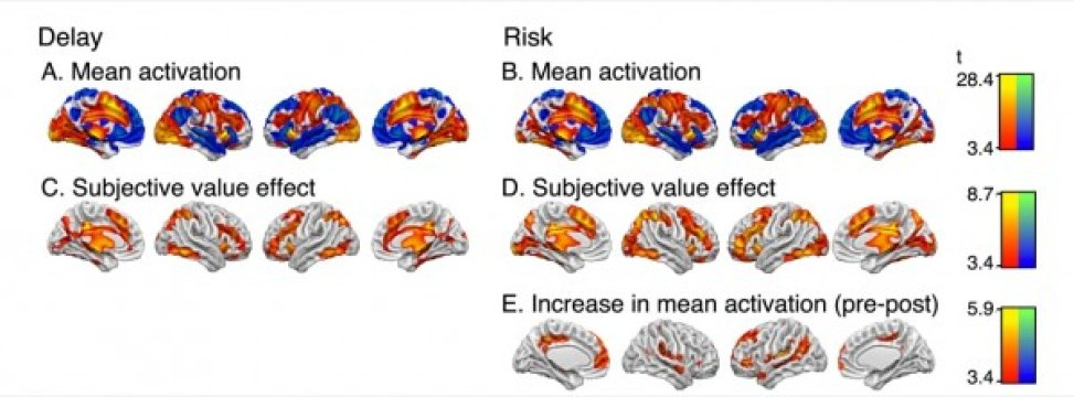Brain Activity During Decision making