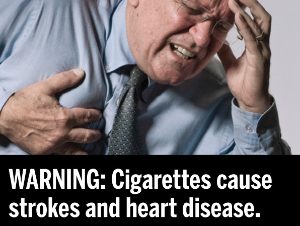 Smoking Causes Heart Disease and Stroke